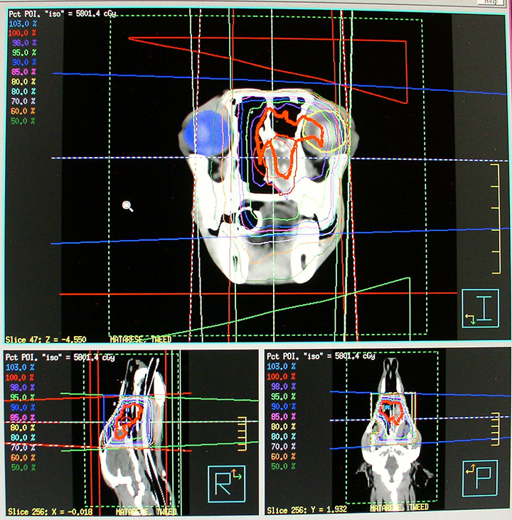 3-D conformal radiation plan for a dog with a nasal tumor. The prescribed dose of radiation therapy is being delivered to the tissue inside the thick red line. In this particular case, wedges of metal are inserted into the beams of radiation, which progressively attenuate a dose of radiation across a field.