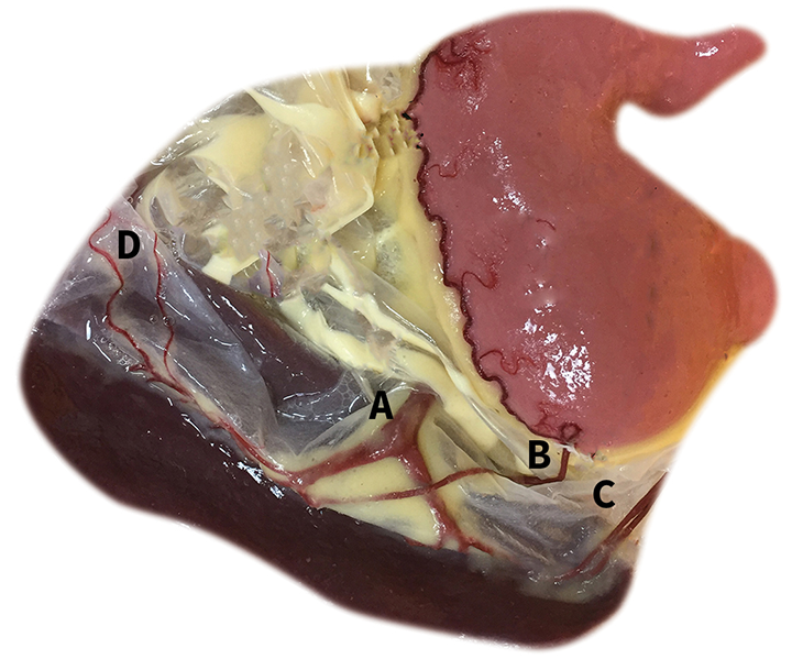 Splenic and regional vascular anatomy showing the splenic artery (A), gastroepiploic artery (B), short gastric arteries (C), and omental arteries (D)