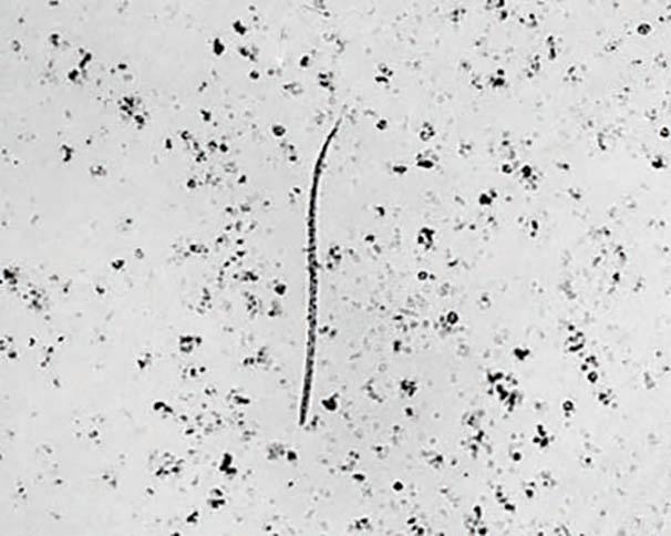 Single microfilaria in a blood smear