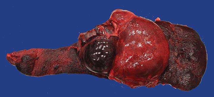 Hemangiosarcomas are the most common splenic malignancy in dogs.3 Lesions are often cavitary, and hemoabdomen is common.