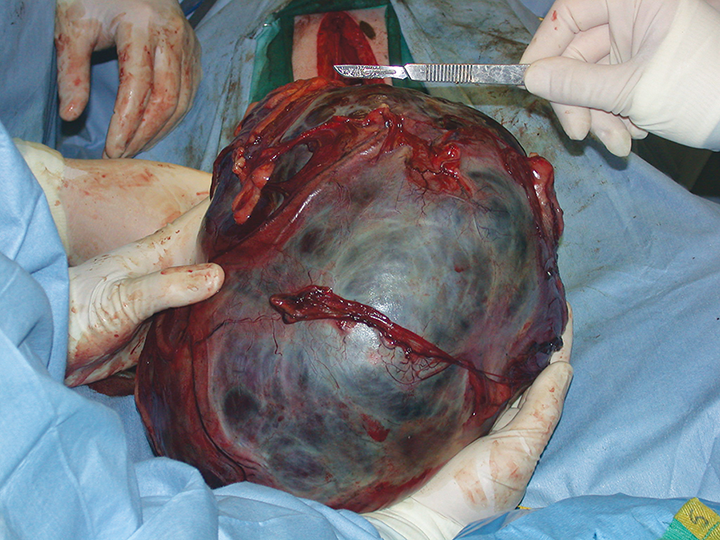 Splenic hematomas are the most common benign splenic mass. They may be quite large and are grossly indistinguishable from hemangiosarcoma.
