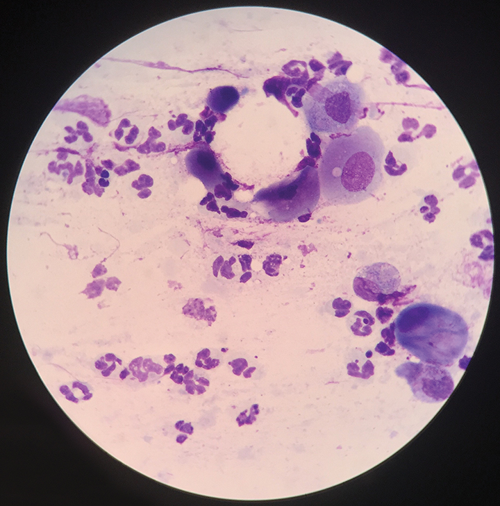 Microscopic evaluation of the conjunctival cytology sample collected from the patient in Figure 1also revealed neutrophilic inflammation with no infectious agents, which indicates secondary conjunctivitis.