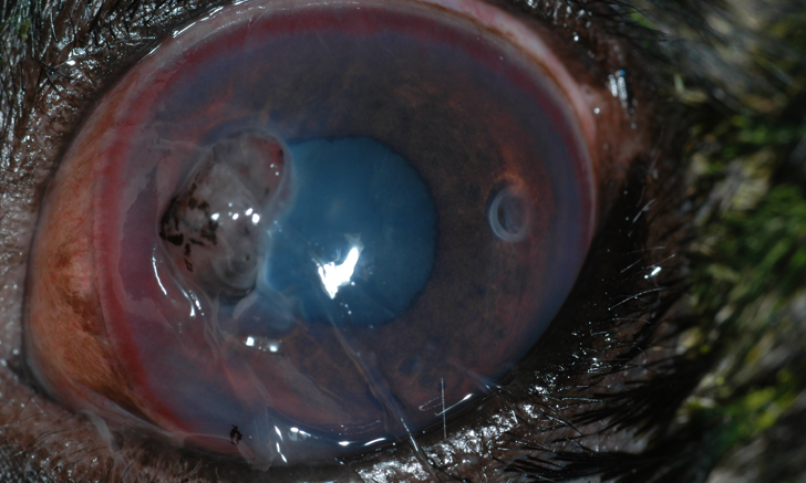 Image Gallery: Corneal Perforations Do Not All Look the Same