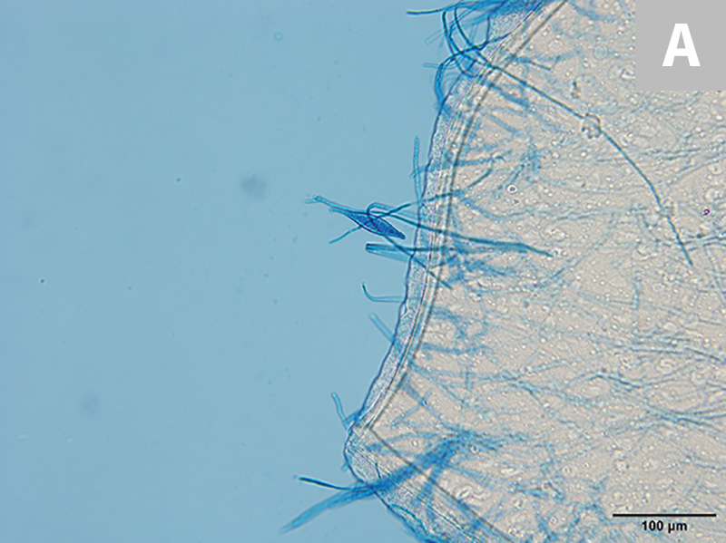 M canis forms spindle-shaped macroconidia with thick walls and a knob at the terminal end; 6 or more cells per macroconidia are present (A, 20×; B, 100× oil immersion).