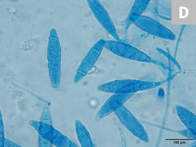 M gypseum forms spindle-shaped macroconidia with thin walls and lacks a knob at the terminal end; 6 or fewer cells per macroconidia will be present (C, 20×; D, 100× oil immersion).