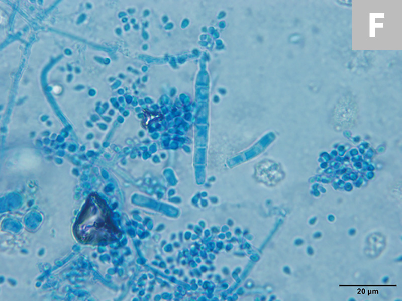 T mentagrophytes macroconidia are often cigar-shaped with thin walls; some isolates will have spiral hyphae. Globoid microconidia arranged singly or in clusters along hyphae can also be seen (E, 20×; F, 100× oil immersion).