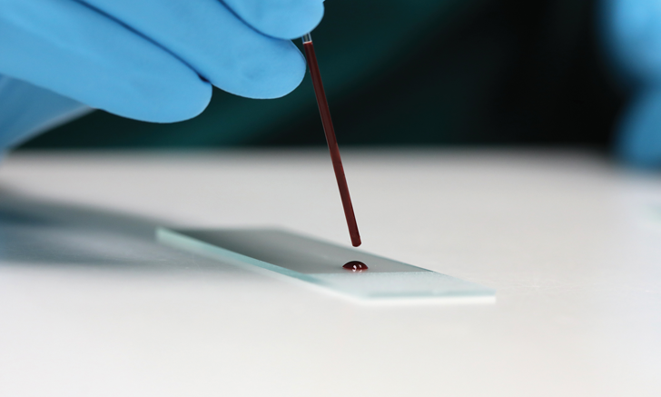 Diagnostic Blood Smear Preparation