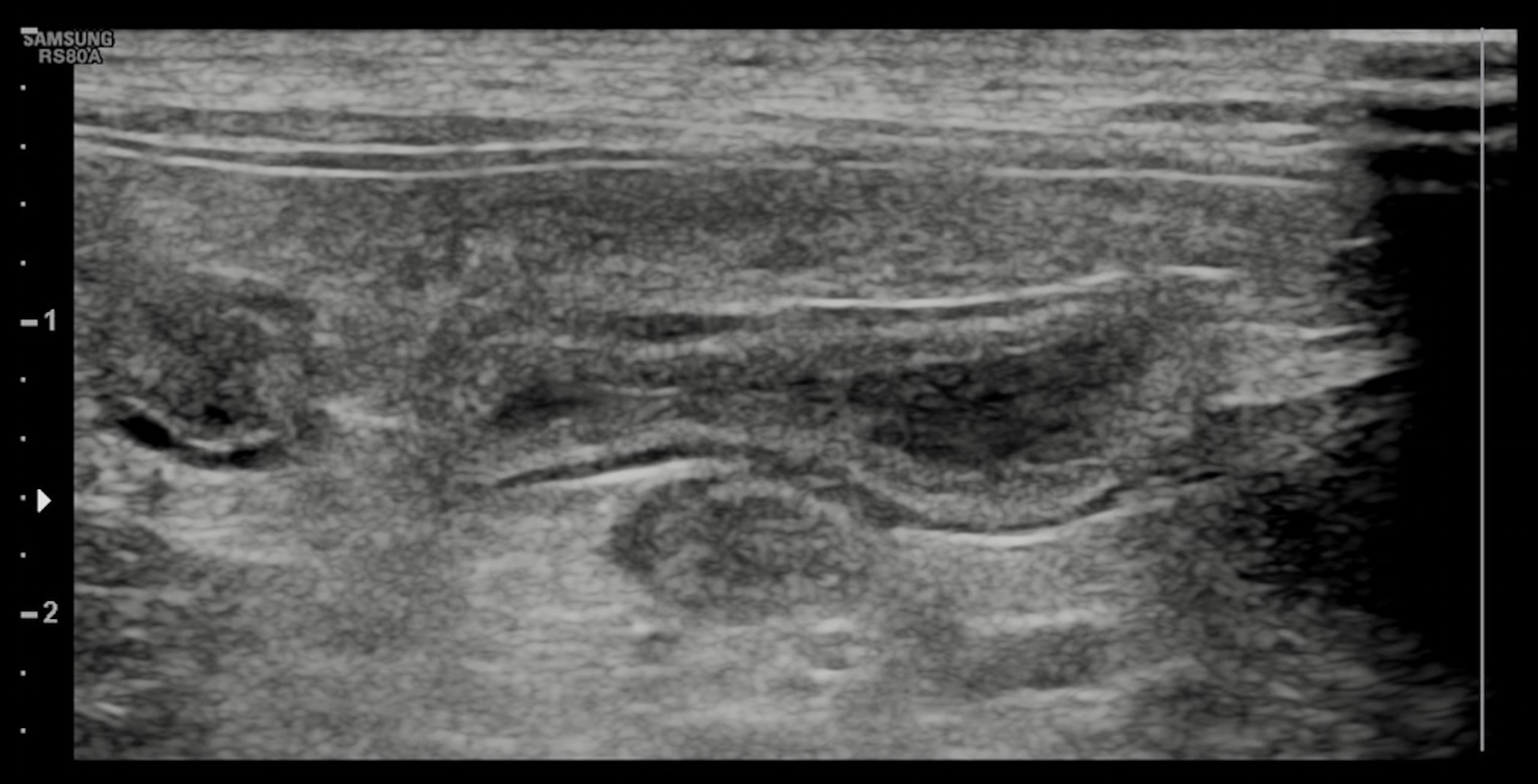 Abdominal ultrasound demonstrated no evidence of small intestinal obstruction or intussusception; findings were suggestive of enteritis.