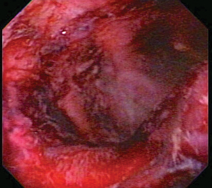 Endoscopic image of duodenal ulcers in a critically ill patient