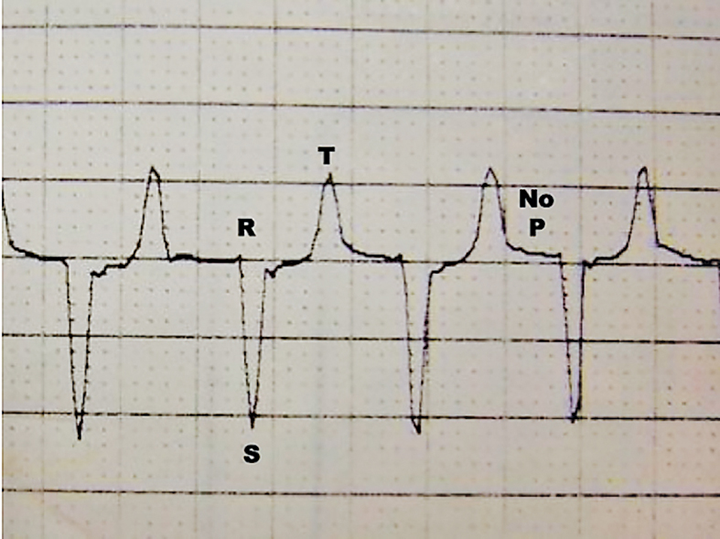 ECG from a cat with hyperkalemia caused by urethral obstruction. Atrial standstill (absent P waves) can be seen with supraventricular escape beats at 140 bpm.