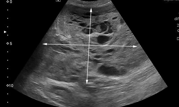 Intrahepatic Splenosis in a Labrador Retriever