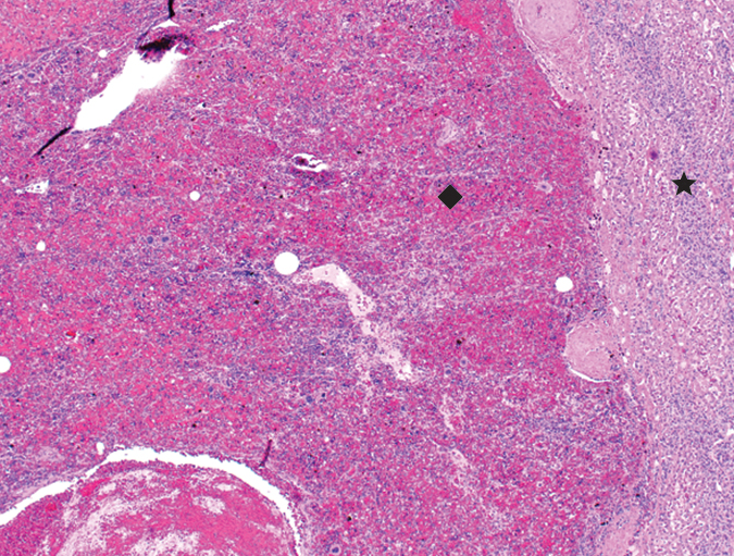 Histopathology of hepatic mass with compressed hepatocytes (star) and splenic red pulp (diamond). Necrosis can be seen in the lower left corner.