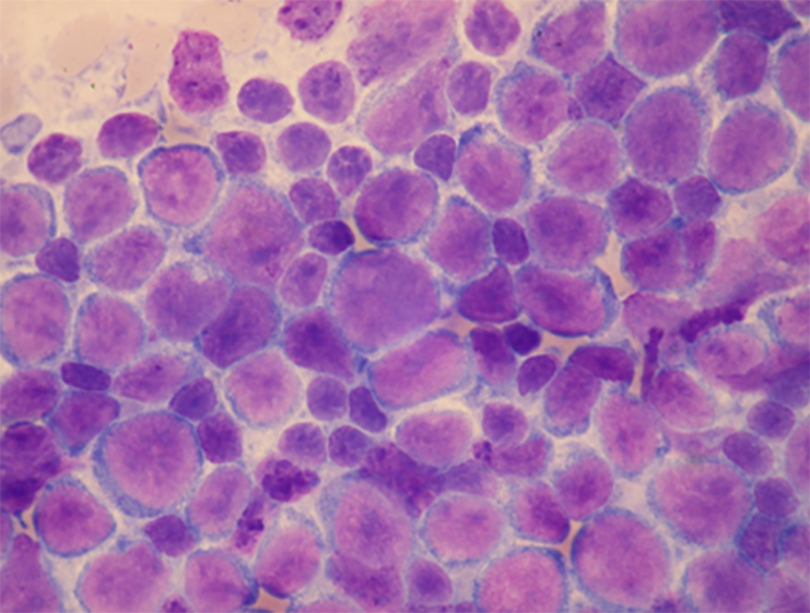 Cytology of aspirated enlarged lymph node confirming a diagnosis of relapsing, diffuse, large-cell lymphoma