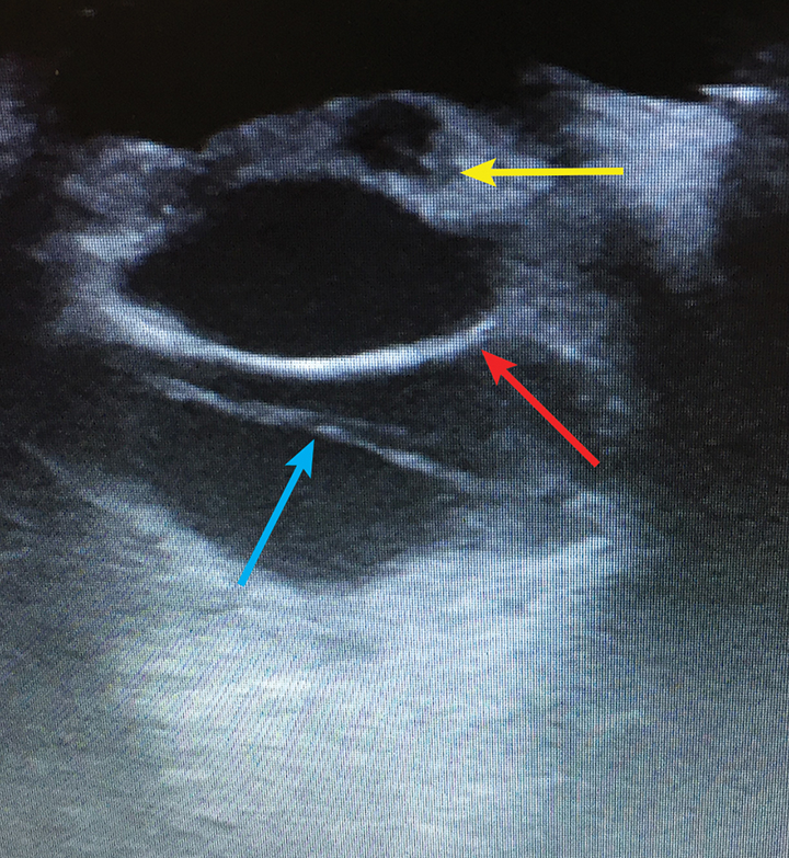 Ultrasonographic image of the patient's left eye obtained on initial presentation. The cornea is near the top of the image, and the sclera is toward the bottom of the image, with the posterior lens capsule (red arrow) visible. Retinal detachment (blue arrow) is visible as a hyperechoic line in the vitreal space, and the cavitary lesions of the iris (yellow arrow) are present anterior to the posterior lens capsule.