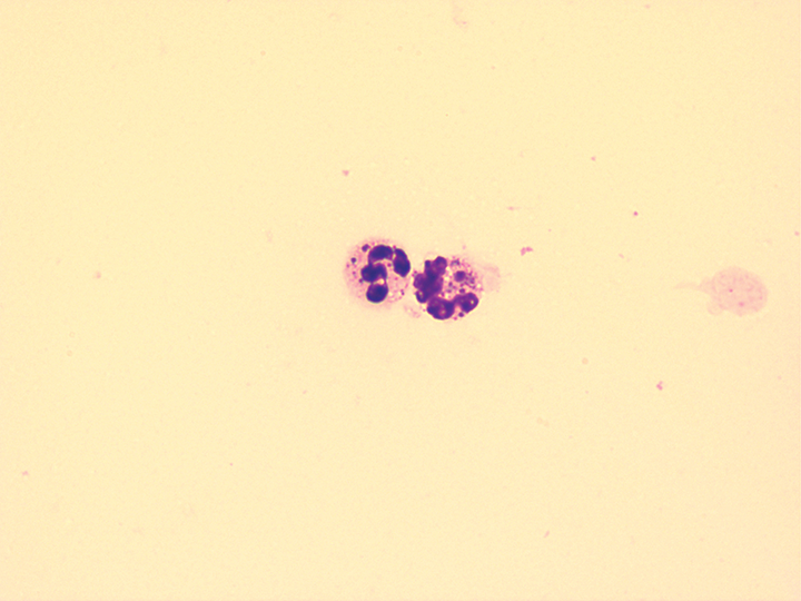 Synovial fluid from a dog with systemic lupus erythematosus. The neutrophils contain many cytoplasmic inclusions. The cell is described as a ragocyte and can be identified in patients with systemic lupus erythematosus. Wright-Giemsa stain; 100× total magnification