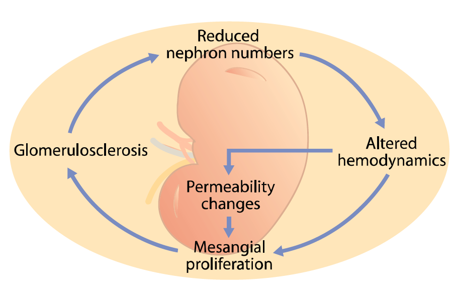 Schematic showing the progressive effect of glomerular capillary hypertension.