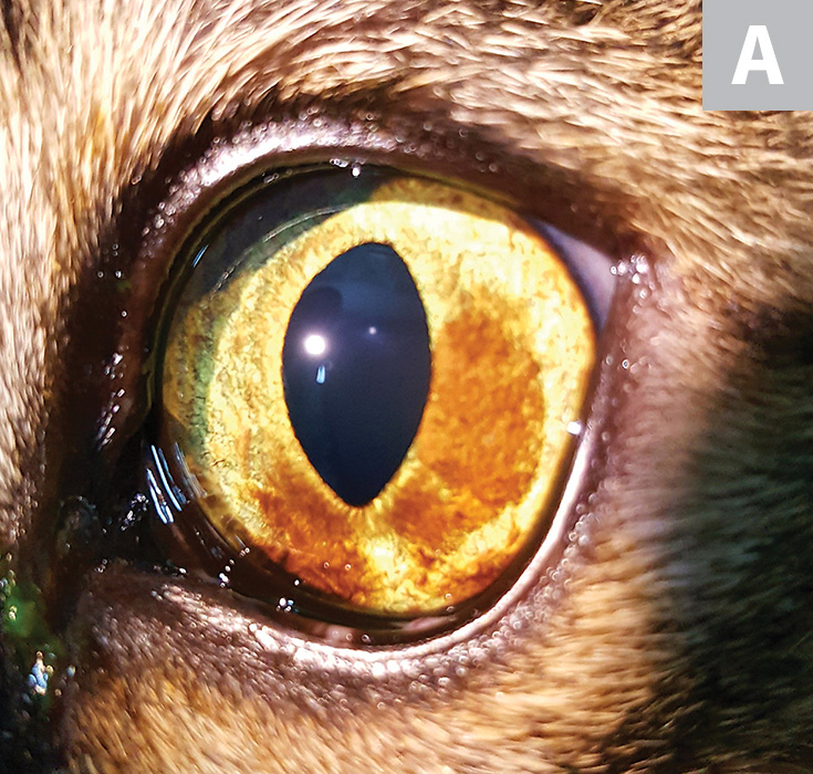 A relatively light diffuse iris melanosis in a cat approaching the iridocorneal angle at the 7 o'clock position (A). A more progressed iris melanosis approaching the iridocorneal angle at almost 360° (B). The pigmentation is denser and occupies a larger area of the iris as compared with the patient in Figure A.