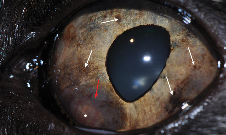 Anterior Uveal Melanocytic Neoplasia