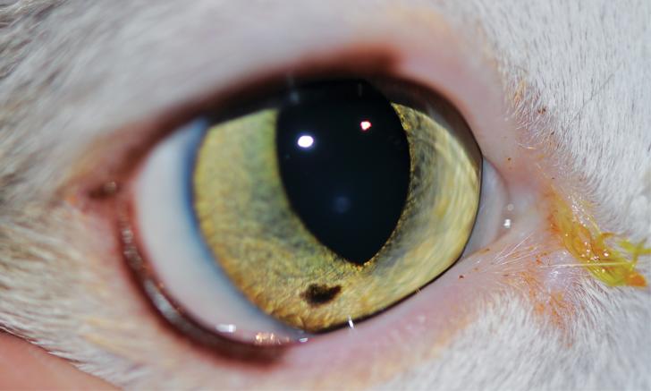 Iris Freckles, Nevi, & Melanosis