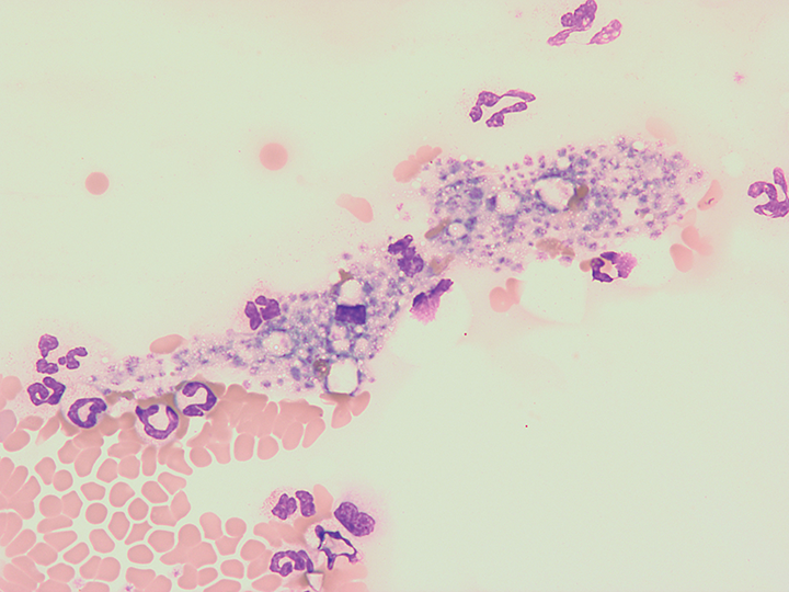 Platelet clump from a canine blood smear. Platelet clumps will interfere with the accurate assessment of automated platelet counts and estimates from a blood smear. Wright-Giemsa stain; 500× total magnification