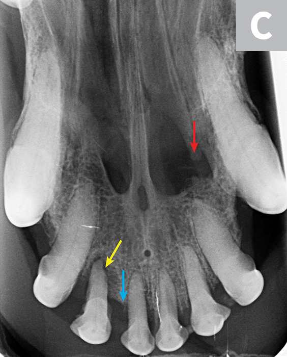 Dental radiographs of the right (A) and left (B) maxillary canine teeth (lateral views) and the rostral maxillae (C; occlusal view) confirmed mild horizontal and severe vertical bone loss at the mesial aspect of both maxillary canine teeth. Moderate to severe horizontal bone loss at the right maxillary first incisor tooth (blue arrow) and total loss of attachment with inflammatory root resorption at the right maxillary second incisor tooth (yellow arrow) were present. The remaining maxillary incisor teeth were affected by mild horizontal bone loss. Although the occlusal view of the rostral maxillae is slightly asymmetric, osteolysis was evident in the area of the left palatine fissure (red arrow). Mild horizontal bone loss was diagnosed at several other teeth. In addition, retained root tip of the left maxillary (presumably) first premolar tooth (white arrow) was identified.