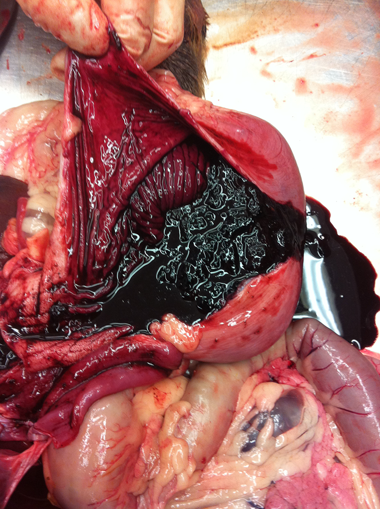 Gastric bleeding with severe diffuse ulceration