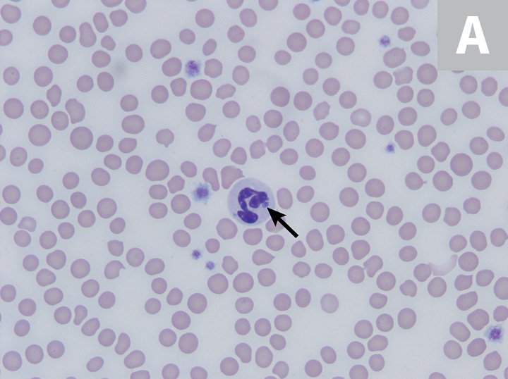 Feline neutrophils containing A phagocytophilum morula. Wright's stain. Images courtesy of P. Ewing, Angell Animal Medical Center