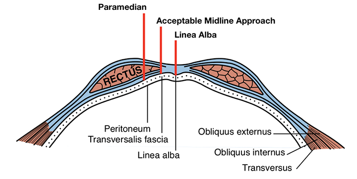 Paramedian incision, linea alba incision, and an acceptable midline approach. Figure adapted from Anatomy of the Human Body, illustrated by Henry Vandyke Carter, used under fair use
