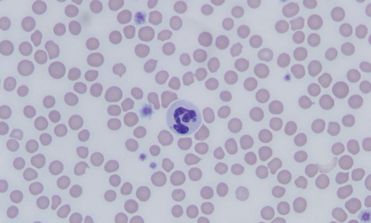 Granulocytic Anaplasmosis