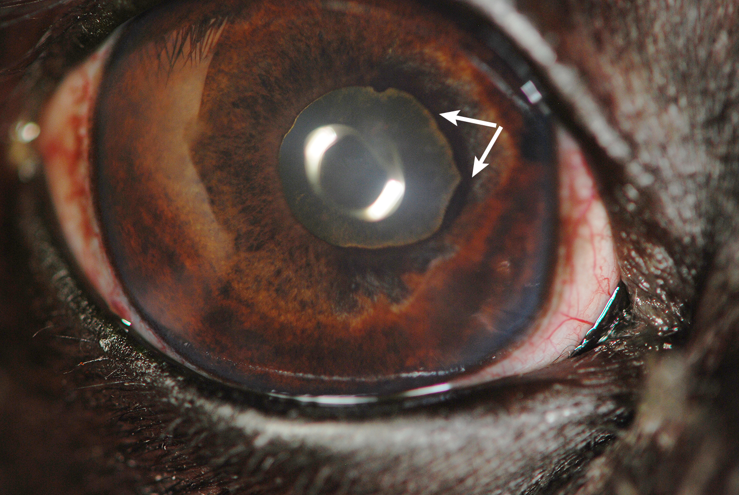 Corneal edema and episcleral injection have improved. Dyscoria and posterior synechiae are still present (arrows).