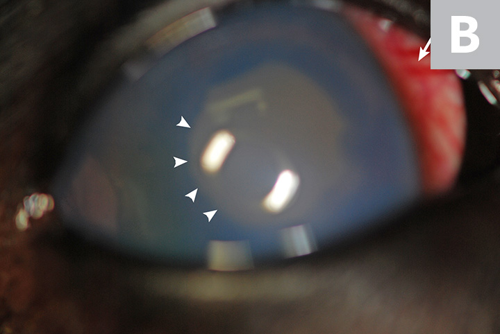 The affected eye showing (A) pronounced conjunctival hyperemia (arrow) and moderate-to-severe corneal edema, as well as (B) episcleral injection (arrow) and a mid-sized pupil with slight dyscoria (arrowheads)