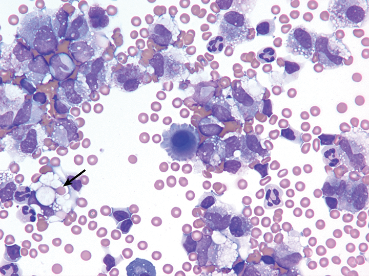 Cytospin preparation of a hemorrhagic effusion from a dog. Erythrophagia (one represented by the arrow) can be noted in several macrophages.