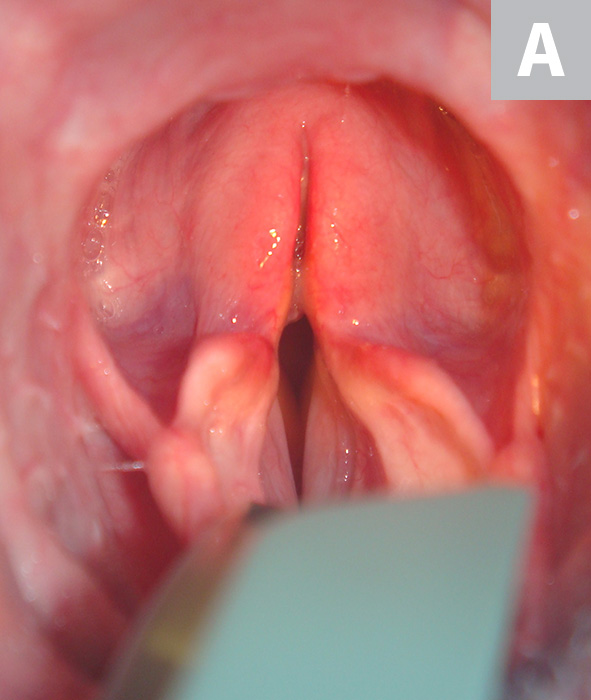 Per os view of the laryngeal aditus. Appearance of the paralyzed larynx before surgery (A). Neither adduction on sensitivity testing nor abduction on administration of doxapram was noted. Immediate postoperative appearance of the rima glottidis following left-sided cricoarytenoid laryngoplasty (B). This procedure provides a permanent, asymmetric widening of the paralyzed glottis, immediately relieving signs of respiratory obstruction.