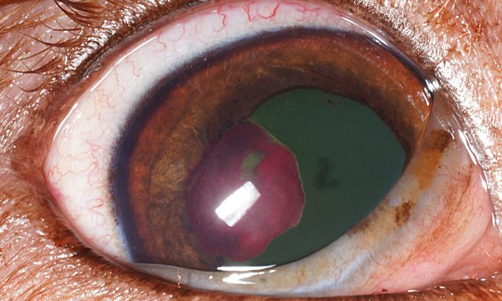 Diseases of the Iris & Anterior Chamber