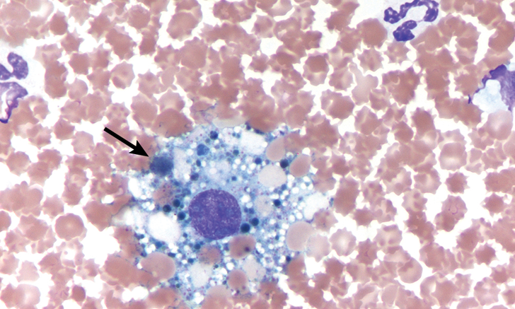 Effusion Cytology