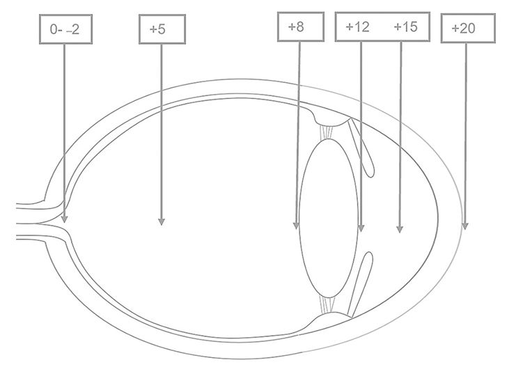 Cross-section of the eye. A direct ophthalmoscope can be used to view the structures of the anterior segment with magnification. To bring the anterior segment into focus, the lens wheel should be rotated through the positive (green or black) diopters. With the direct ophthalmoscope placed 2 cm from the cornea, the following structures are usually in focus at the corresponding diopters: cornea +15 to +20; anterior chamber +12 to +20; iris and pupil +12; lens +8 to +12; and vitreous 0 to +10.