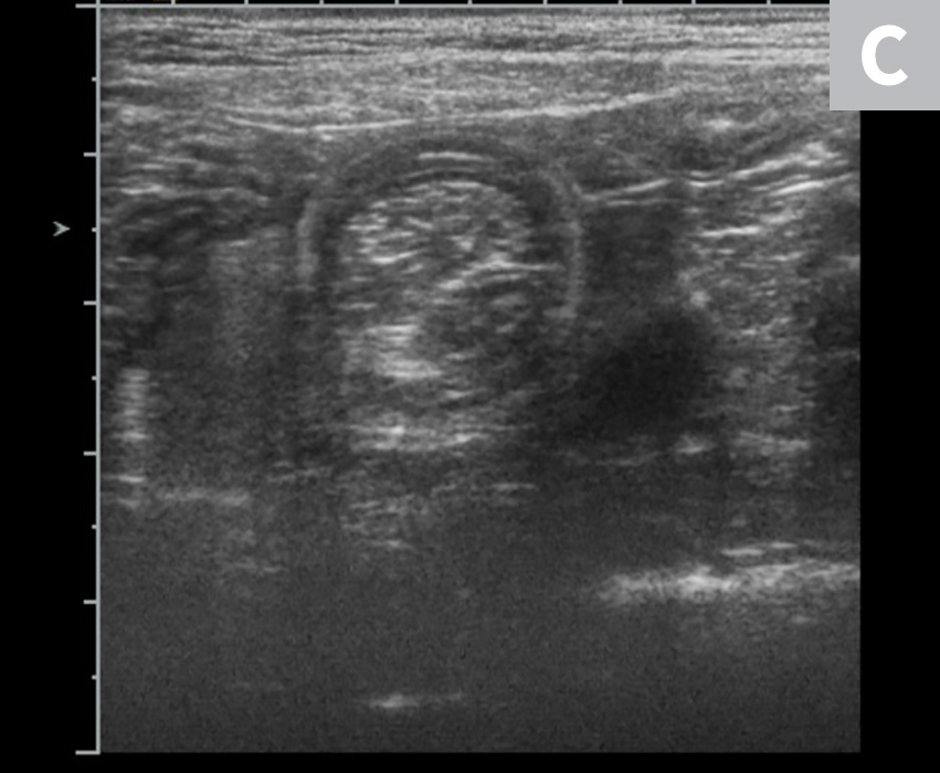 Abdominal ultrasound images of a dog with jejuno-jejunal intussusception secondary to an intestinal sarcoma (A), a dog with ileocolic intussusception (B), and a dog with jejuno-jejunal intussusception without an identifiable underlying cause (C)