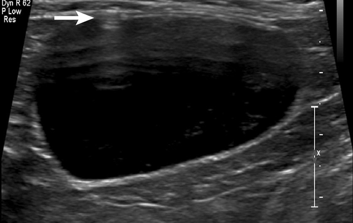 Reverberation artifact from free gas that was iatrogenically left in the urinary bladder after cystocentesis, noted by the parallel, horizontally oriented hyperechoic lines extending into the urinary bladder (arrow). This is not considered a complication but may be seen following the procedure.