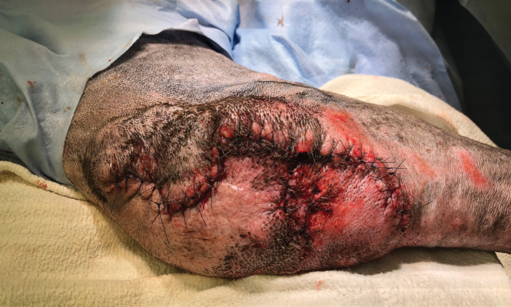 Negative Pressure Wound Therapy for Complicated Elbow Hygroma