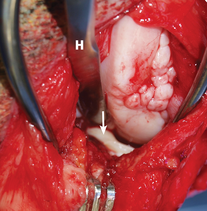 Intraoperative image demonstrating identification of medial meniscal tears by craniomedial arthrotomy in the dog in Figure 2. A Hohmann retractor (H) has been placed to allow inspection of the caudal joint space. The caudal pole of the medial meniscus has sustained a bucket handle tear and is flipped cranially (arrow).