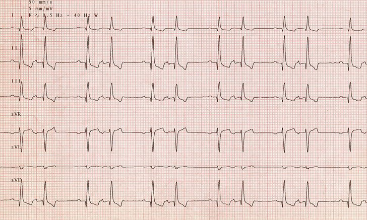 Quiz: Identify the Arrhythmia