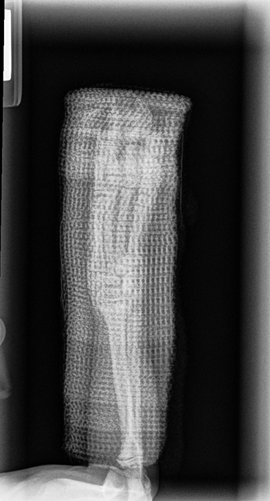 Immediate postreduction radiograph with a caudal splint