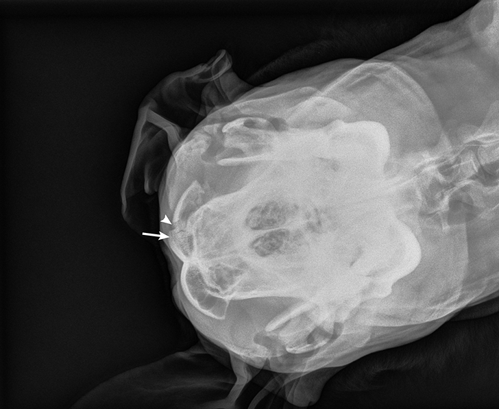 Open reduction and fixation may be performed with orthopedic sutures to minimize the amount of metal used. Alternatively, tiny contoured plates may be used for difficult fragment reduction.14 In patients with head trauma, neurologic status should be evaluated on presentation and throughout hospitalization to assess for traumatic brain injury. Advanced imaging should be considered if the patient's condition worsens or does not improve during hospitalization.