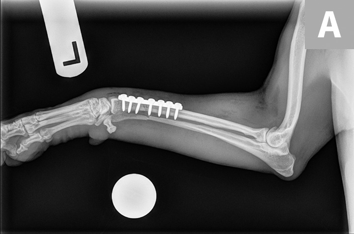 Immediate postoperative radiographs with orthogonal views (lateral, A; dorsopalmar, B) showing appropriate reduction and alignment