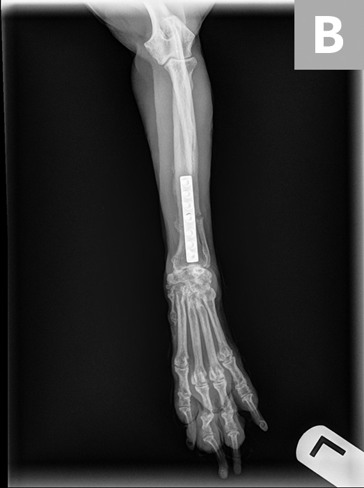 Eight-week postoperative radiographs with orthogonal views (lateral, A; dorsopalmar, B) showing evidence of bone healing (ie, bony callous; arrowhead) of the radius; however, there is bone resorption at the ulnar fracture site (arrows). The nonunion in these radiographs is a common complication of radial/ulnar fracture management in small-breed dogs. Inadequate healing of the ulna may not be significant as long as the radius heals well.