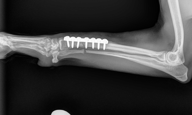 Quiz: External Coaptation vs Surgical Fixation for Bone Fractures