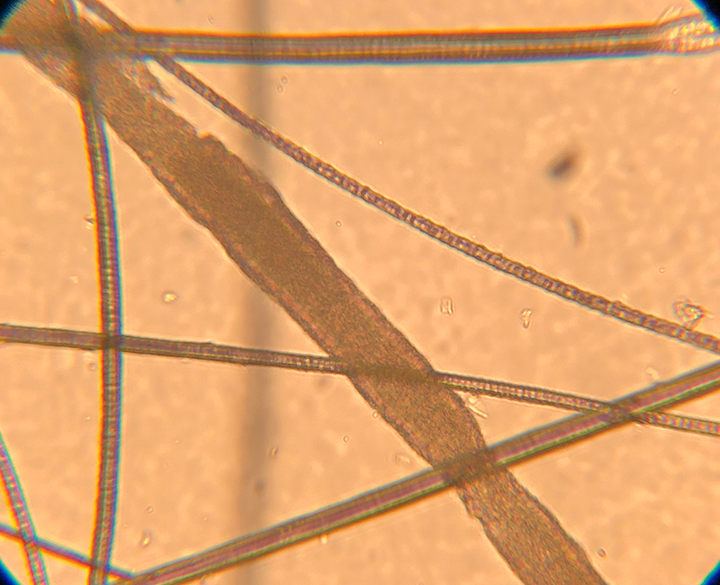 Microscopic view of an infected hair wider than normal hairs; internal structures of the hair shaft are not visible. 10× magnification. Image courtesy of Dr. Karen A. Moriello