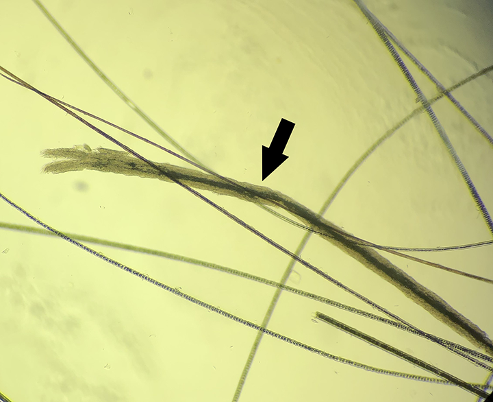 Microscopic view of a newly infected hair wider than surrounding hairs; some internal structures (eg, dark black pigment; arrow) are visible on the proximal part of the hair. 4× magnification. Image courtesy of Dr. Karen A. Moriello