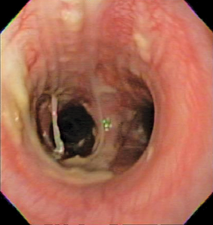 Bronchoscopy results demonstrating mucosal irregularity, hyperemia, and characteristic greenish-yellow airway exudate