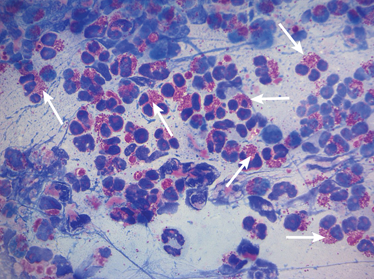 Characteristic cytologic eosinophilic inflammation. Pink granules typical of eosinophils can be seen (arrows).